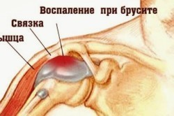 Хруст в спине при движении лопатками и вращении плечом: причины, симптомы и лечение лопаточного хруста