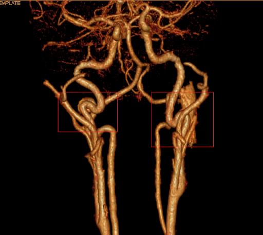 Непрямолинейность хода позвоночных артерий: непрямолинейный ход обеих артерий v2, справа или слева
