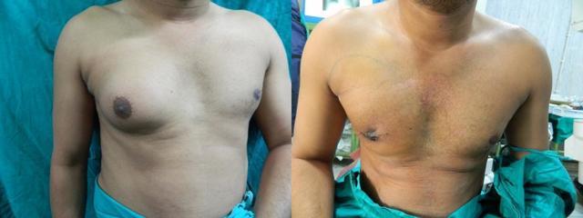 Почему у мальчиков набухают молочные железы: причины увеличения грудных желез у подростков в переходном возрасте