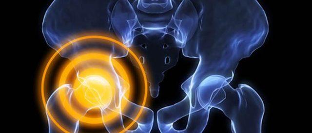 Почему щелкает сустав в бедре без боли при ходьбе и поднятии ноги