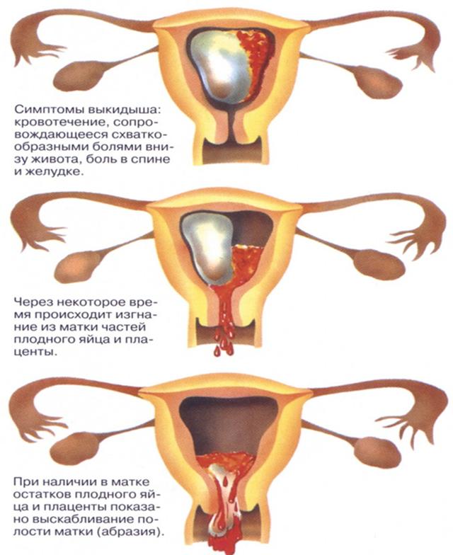 Тянущие боли внизу живота на 6 неделе беременности: причины, диагностика, лечение и прогноз