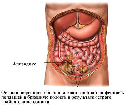 Местный перитонит: симптомы, лечение, профилактика и прогноз