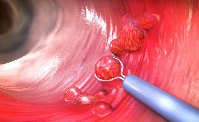 Полипы в животе: причины, симптомы, лечение и прогноз