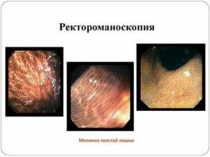 Меланоз толстой кишки: причины, симптомы, диагностика и лечение