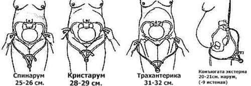 Нормальные размеры таза для естественных родов