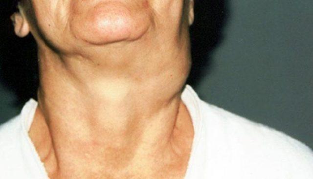 Опухла шея с левой или правой стороны, сзади или спереди: причины припухлости у ребенка и взрослого