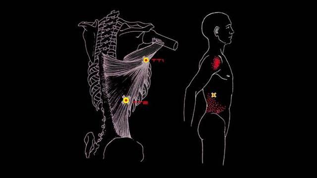 Широчайшая мышца спины: анатомия, функции, расположение, иннервация, начало и прикрепление