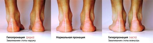 Как определить пронацию стопы: гипопронация, гиперпронация, нейтральная