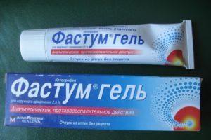 Мази, крема, гели от радикулита поясничного отдела: со змеиным ядом, обезболивающие, диклофенак, нимулид