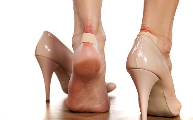 Как лечить мокрые мозоли на пальцах ног: мази, пластыри и народные средства