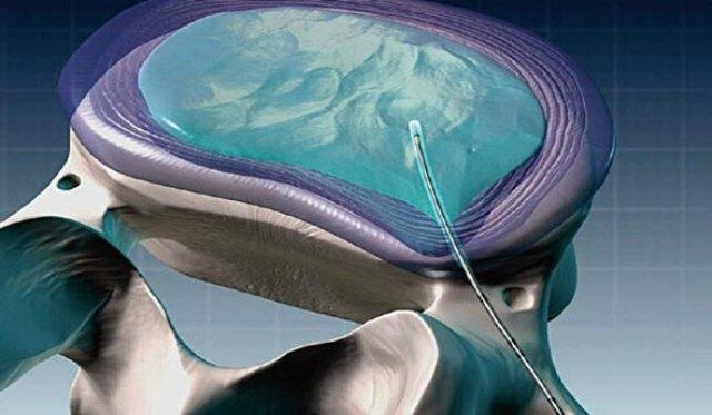 Что такое нуклеопластика: лазерная, гидронуклеопластика, пункционная декомпрессивная, перкутанная