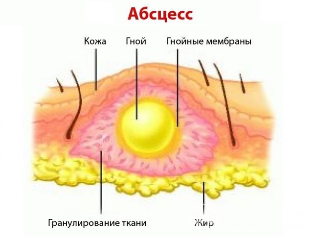 Абсцесс бедра: причины, факторы риска, симптомы, лечение и фото
