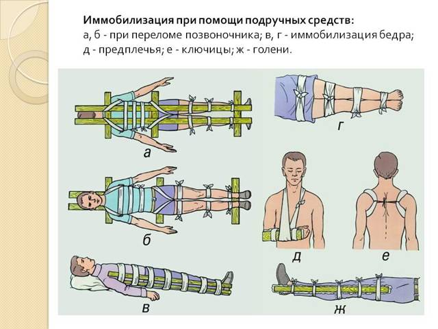 Иммобилизация при переломе бедра: какие суставы, когда и зачем подлежат фиксации