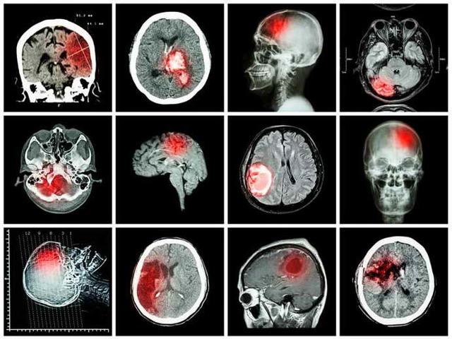 Органическое поражение головного мозга и методы его лечения