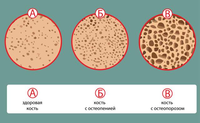 Остеопения шейки левой бедренной кости: причины, диагностика, лечение и профилактика