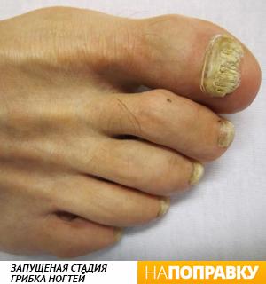 Грибок ногтей на ногах: симптомы, причины, стадии
