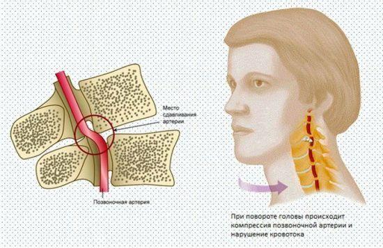 Симптомы и лечение онемения при шейном остеохондрозе: лица, головы, рук, ног, губ, языка