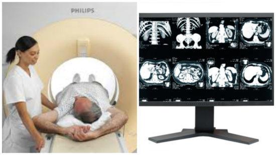 МРТ малого таза у мужчин: что показывает, подготовка, расшифровка результатов и цена