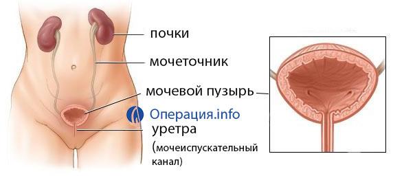 Удаление мочевого пузыря у мужчин: последствия и можно ли жить после операции