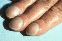 Деформация ногтей на ногах: причины и лечение, фото
