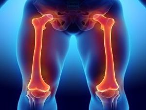 Остеобластома бедренной кости: причины, классификация, лечение, прогноз и фото