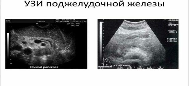 Обследование брюшной полости: подготовка, основные способы и проведение