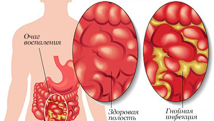 Осложнения и последствия перитонита
