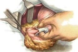 Лечение спаечной болезни брюшной полости: основные методы терапии и прогноз