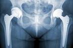 Юношеский эпифизеолиз головки бедренной кости: диагностика, лечение, последствия и реабилитация