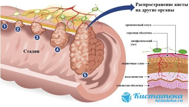 Киста брюшной полости: причины, симптомы, лечение и прогноз