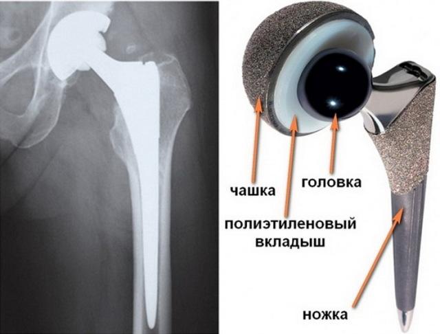 Осложнения после эндопротезирования тазобедренного сустава: виды, симптомы, лечение и профилактика