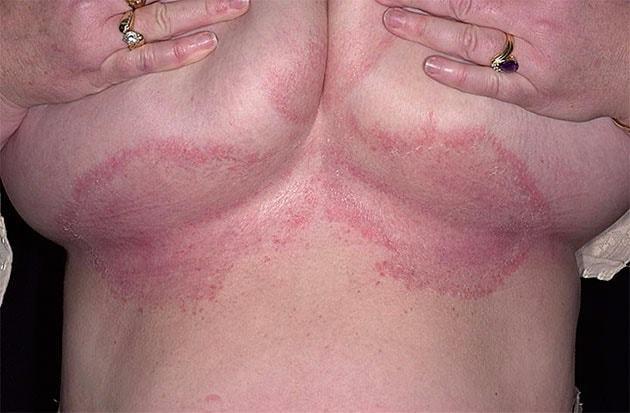 Потница под грудными железами: причины и лечение у взрослых