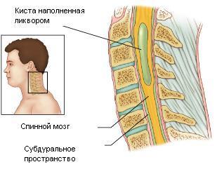 Сирингомиелия: что это такое, симптомы и лечение