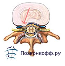 Циркулярные протрузии межпозвонковых дисков: задняя (циркулярно-дорсальная), поясничного отдела l3-l4, l4 -l5, грудного и шейного отдела