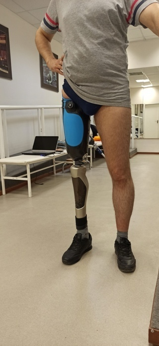 Замена бедренного сустава: модульные протезы бедра и кости, поясное, вакуумное крепление, силиконовые чехлы
