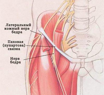 Невропатия латерального и наружного кожного нерва бедра: симптомы и лечение