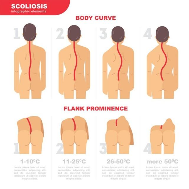 Физиотерапия при сколиозе 1-2 степени у детей и взрослых: электрофорез, электростимуляция мышц спины, миостимуляция, методика СМТ-терапии