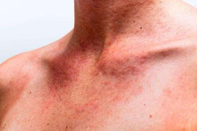 Чем лечить прыщи на спине после загара на солнце и каковы причины появления сыпи
