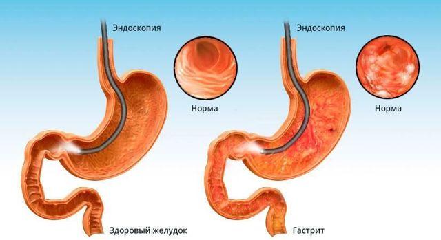 Паразиты в животе: червяки, глисты, гельминты