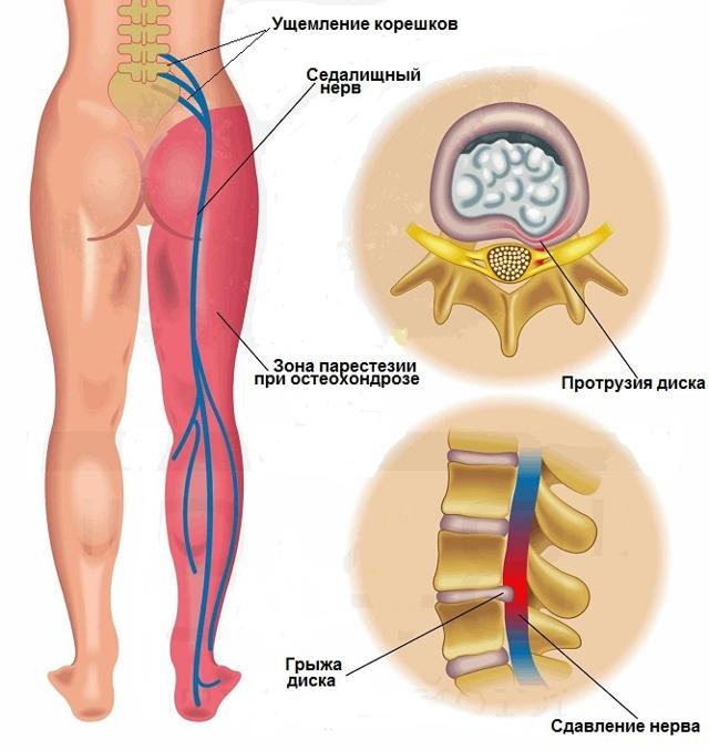 Онемение внутренней и наружной поверхности бедра: причины, лечение и профилактика