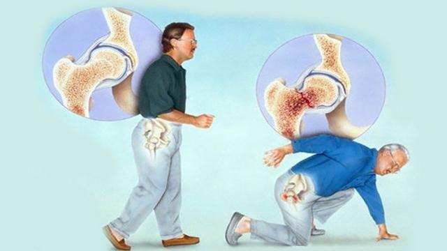 Остеопороз тазобедренного сустава у женщин: стадии, симптомы, лечение и прогноз на выздоровление