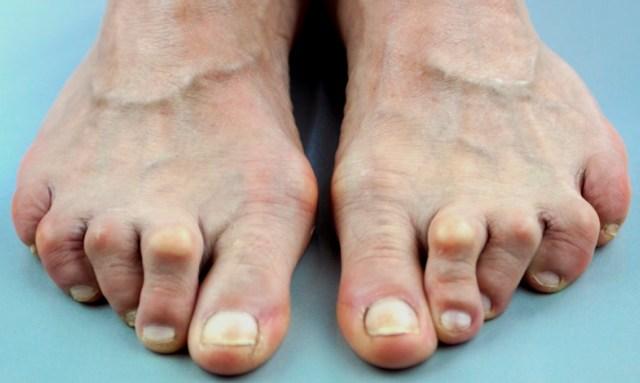 Искривление и деформация пальцев ног: как исправить, вылечить и выпрямить пальцы