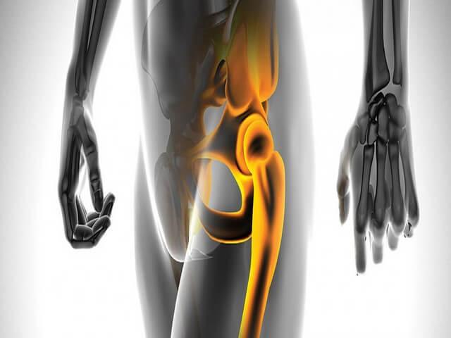 Сроки восстановления при переломе бедра без операции у пожилых людей: лечение, методы реабилитации и прогноз