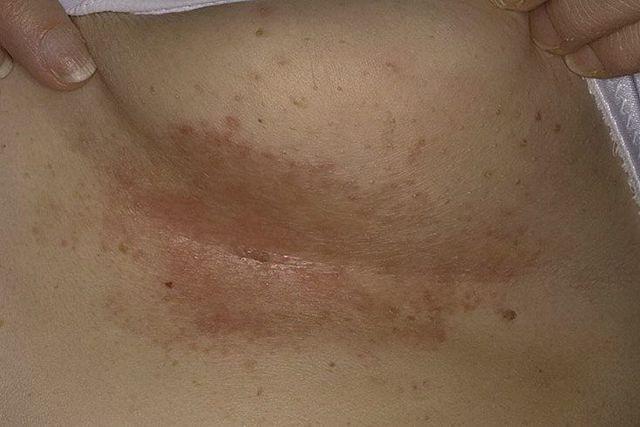 Раздражение на коже под грудью у мужчин и женщин: покраснение и зуд