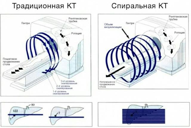 МСКТ брюшной полости и забрюшинного пространства с контрастированием: подготовка и цены