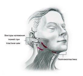 Пластика шеи и подбородка: платизмопластика, контурная пластика, пластическая хирургия