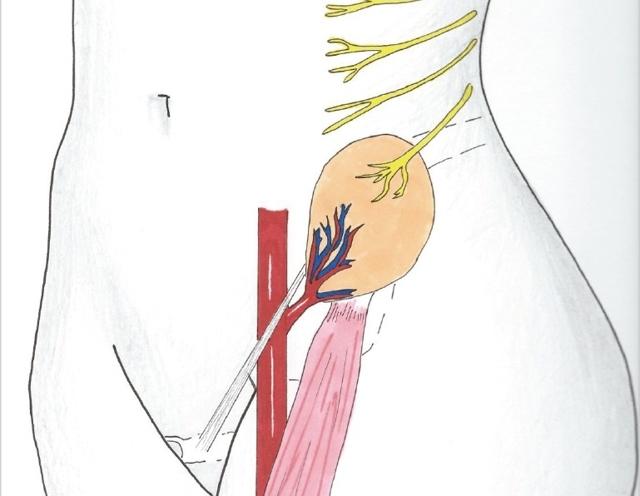 Невропатия подвздошно - пахового нерва: причины, симптомы, лечение и прогноз