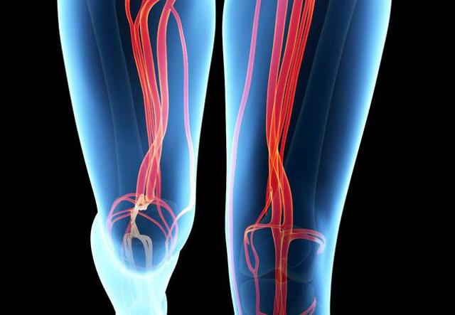 Где находится и проходит бедренная артерия у человека: фото и проекция, ветви, место пульсации