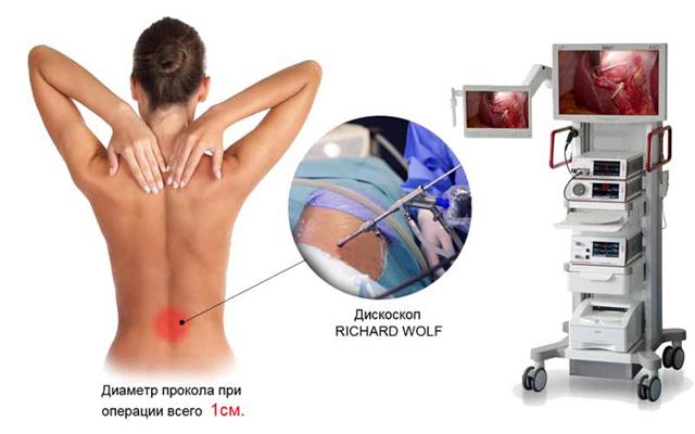 Что такое дискэктомия: эндоскопическая, двусторонняя, с использованием микрохирургической техники, интерламинарная