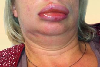 Аллергия на хомяков: симптомы, лечение, народные средства